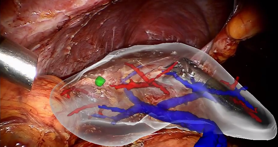 Augmented reality during liver surgery